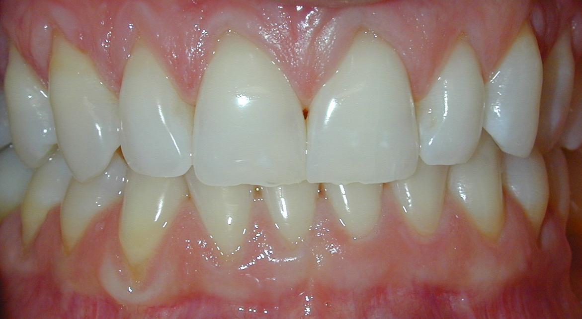 esthetic dentistry whitening