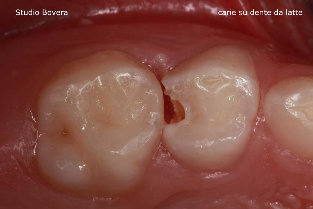 carie bambino, cildren tooth decay